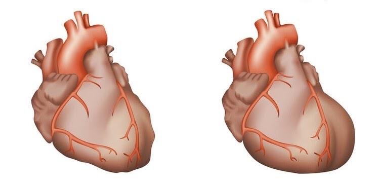 هل تضخم القلب يزول مسبار